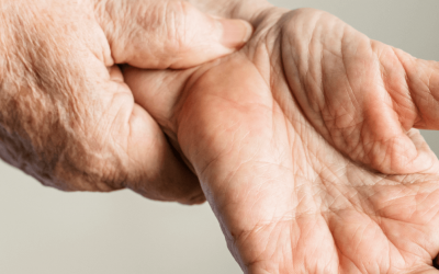 Carpal Tunnel Syndrome Affects More Than 3 Million People a Year