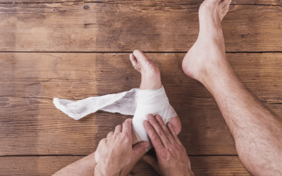 Foot & Ankle Injuries- The Achilles Tendon Rupture