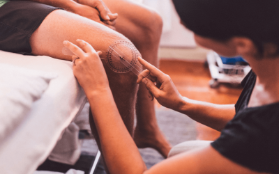 How to Recover After ACL Surgery