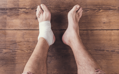 Are You Familiar With Hammer Toe Symptoms and Causes?