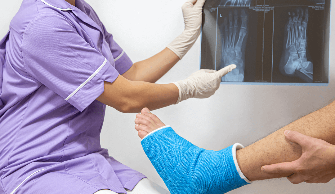 Tips For Identifying And Treating Heel Fractures